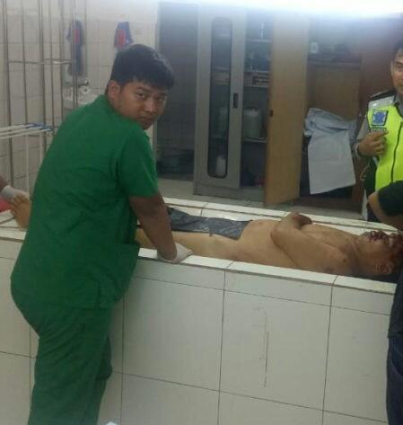 Jenazah korban saat berada di kamar mayat rumah sakit.