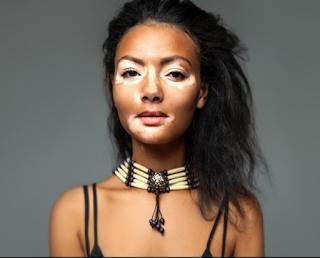 7 Manfaat Merica untuk kecantikan, Hilangkan Jerawat Hingga Cegah Kebotakan