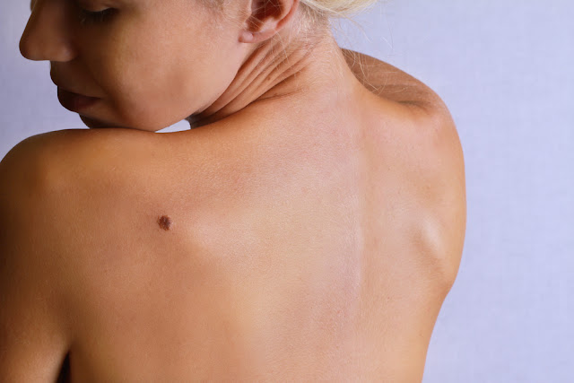 Must Read! If You Have Moles On These Parts Of Your Body, This Is What It Means