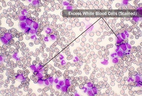 Leukemia Cells