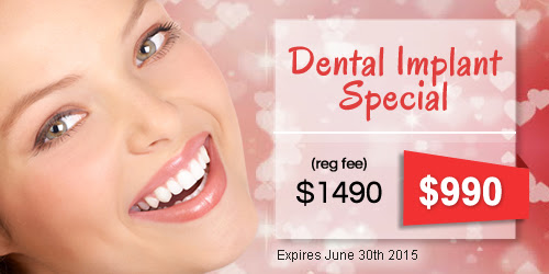 Need a Solution for Missing Teeth? Ask for Our Dental Implants Special!