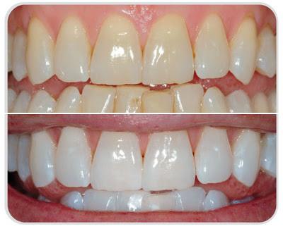 dientes blancos bicarbonato de sodio