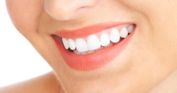4 Cara Memutihkan Gigi Palsu Yang Kuning Dan Hitam Untuk Kembali