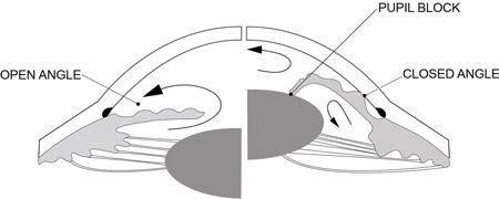 Open Angle Versus Angle Closure glaucoma angle
