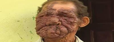 Hombre con Verrugas