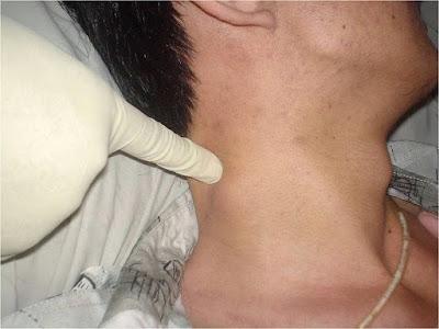 vivix untuk pesakit kanser limfoma