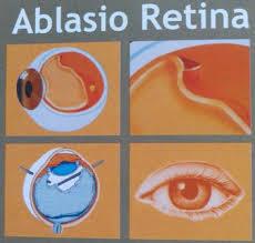 Cara Menyembuhkan Retina Lepas (Ablasio Retina) Tanpa Operasi