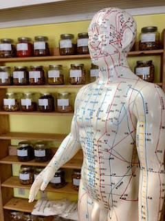 acupuncture,www.healthnote25.com