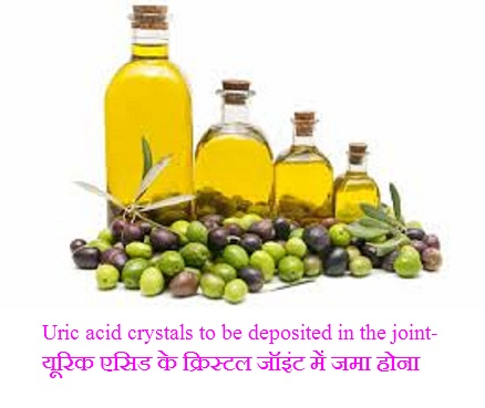 Uric acid-crystals in joint