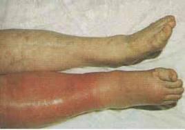 Το κύριο σύμπτωμα είναι το οίδημα του μέλους που μπορεί να συνδυάζεται και  με δυνατό πόνο. Άλλες εκδηλώσεις είναι η ερυθρότητα 798940242e3