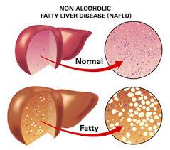 Pengobatan Untuk Sembuhkan Fatty Liver