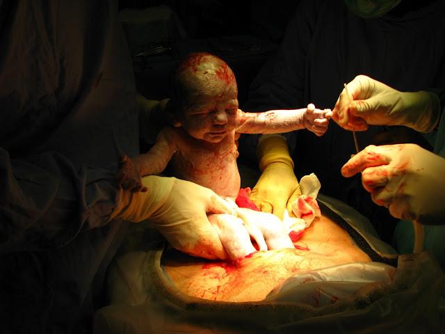 Luka Cesarean Bernanah , Berdarah