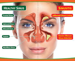 Obat Sinusitis Herbal