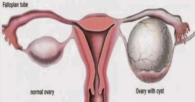 Systemic Candida: Shrinking Ovarian Cysts