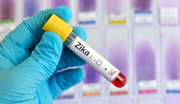 Moustique tigre : les précautions contre le virus Zika