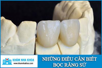 những điều cần biết về bọc răng sứ -1