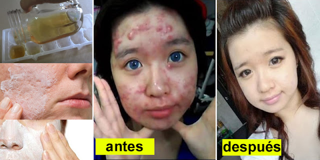 How To Eliminate Acne And Get Perfect Skin In Minutes!
