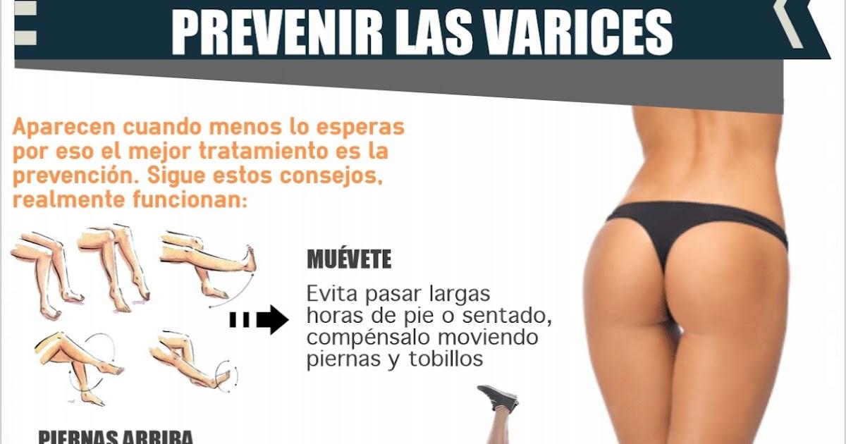 La enfermedad varicosa de las extremidades inferiores hvn-2