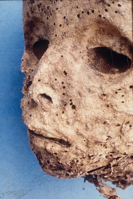 DNA analysis of 16th century mummy, thought to have smallpox, points to hepatitis B instead