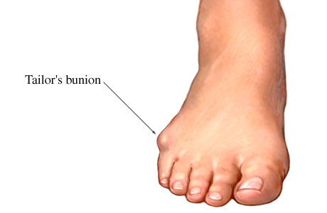 Lateral Foot Pain