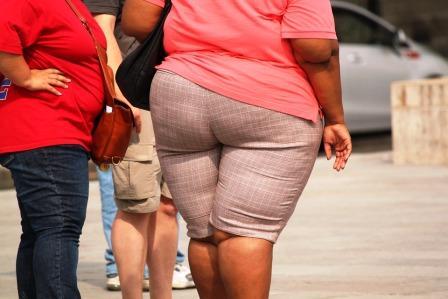 Obezitate femei