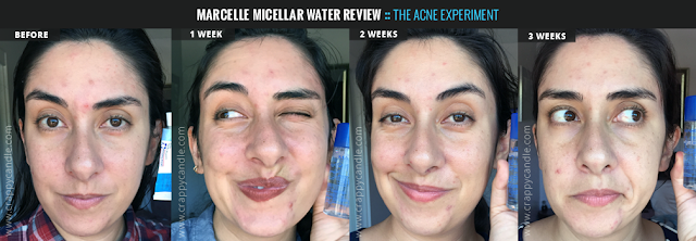Marcelle Micellar Water Before & After - The Acne Experiment