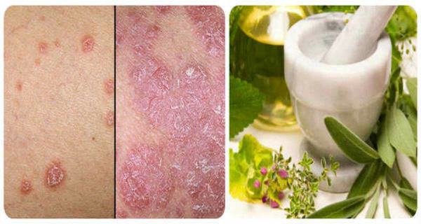 Natural Cure for the Psoriasis