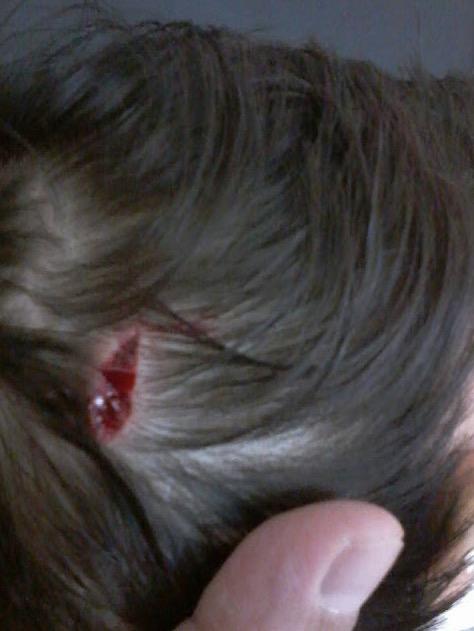 Kanak-Kanak Cedera di Muka dan Kepala Dicakar Kucing Liar di Luar Rumah