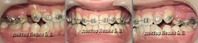 Три фото зубов характеризующие прикус пациента на 2 месяце лечения брекетами.