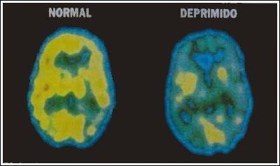 Depresión y química cerebral