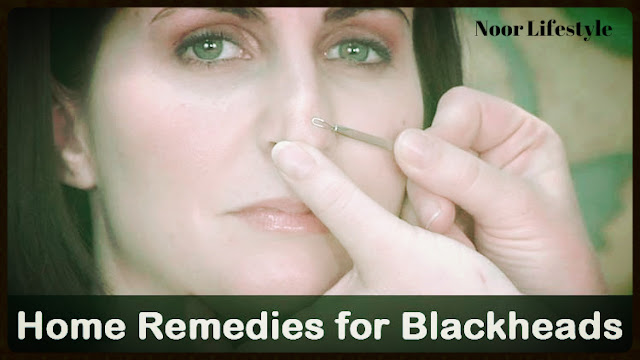How To Prevent Blackheads   Home Remedies For Blackheads