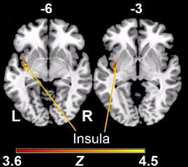 図:左脳の島皮質