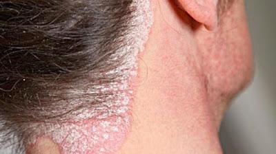 7 Jenis Penyakit Kurap Yang Harus Diketahui