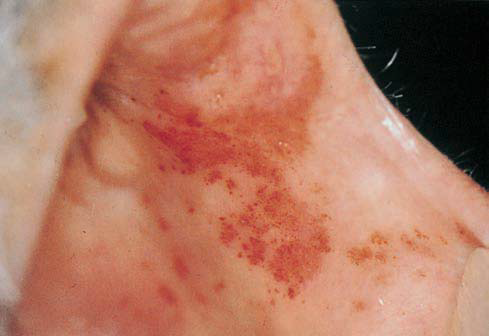 Red Lesions of the Oral Mucosa-Differential Diagnosis ...