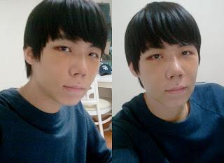 7 hari sesudah operasi plastik mata, operasi plastik hidung, anti aging di Wonjin 02