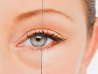 علاج الانتفاخ تحت العين بطريقه طبيعيه