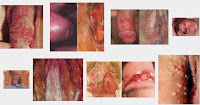 Tanda Tanda Orang Terkena Sipilis Luka Di Bibir Vagina