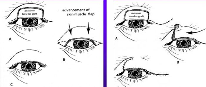 Eyelid Surgery by Prof Dr CN CHUA 蔡鐘能: February 2011