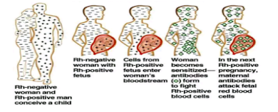 illustration showing the pathophysiology of HDN
