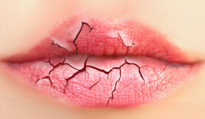 Como ter uns lábios sempre hidratados?