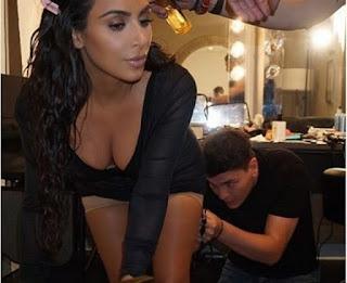 kim-kardashian-padece-de-psoriasis-una-enfermedad-inflamatoria-que-se-manifiesta-a-traves-de-lesiones-en-la-piel-ver-foto