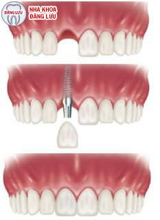 Yếu tố tạo nên thành công cho ca trồng răng implant