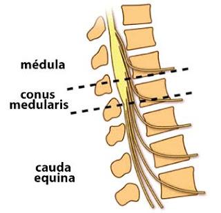 Lesión de neurona motora superior versus lesión de neurona motora inferior