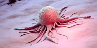 Tak akan ada habisnya bila kita membicarakan perihal duduk kasus kanker Macam-macam Jenis Kanker