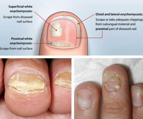 Home Remedy For Dog Nail Infection