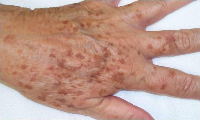 pequeñas protuberancias marrones elevadas en la piel