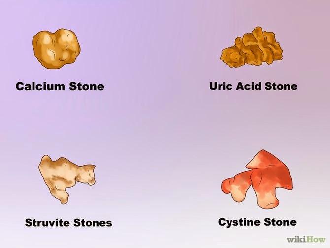 Jamillah Khan's HSC4233 Blog: Types of Kidney Stones