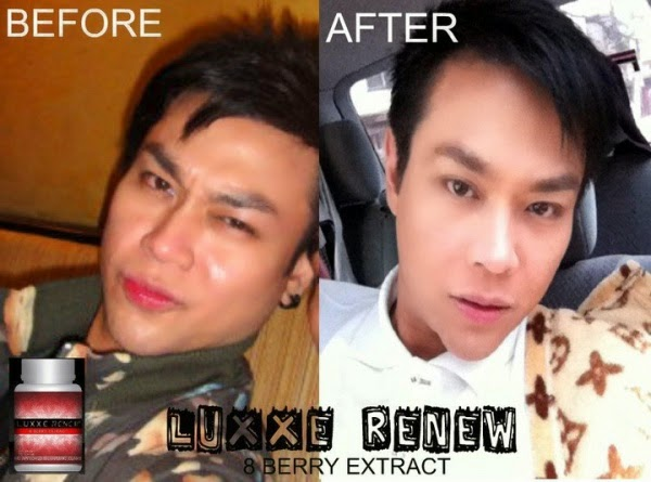 Luxxe Renew Results