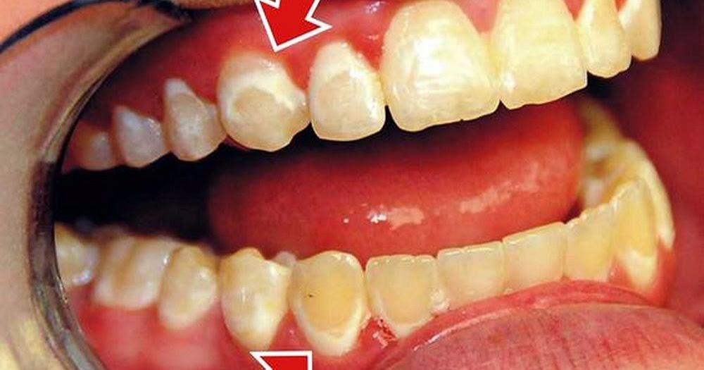Lesiones de mancha blanca en ortodoncia conceptos for W de porter ortodoncia