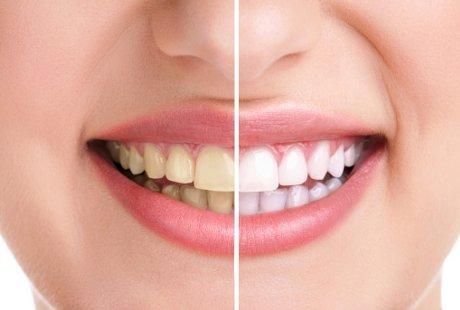 Anda Mungkin Ingin Kurangkan 6 Minuman Lazat Ini Yang Boleh Buatkan Gigi Anda Jadi Kuning!